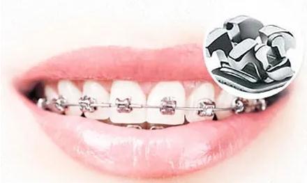 传统牙套和自锁牙套_上海直丝弓矫正大概多少钱